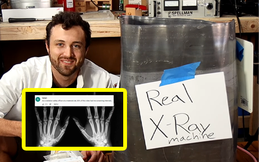 Phải đóng gần 1,6 tỷ đồng tiền viện phí, anh chàng bức xúc về nhà đăng lên YouTube tuyên bố tự tay lắp chiếc máy X-quang tại nhà và kết quả bất ngờ