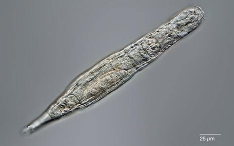 Vừa tỉnh dậy sau giấc ngủ đông 24.000 năm trong băng vĩnh cửu, những vi sinh vật cổ đại lập tức tự nhân bản