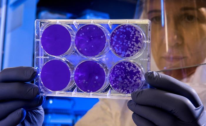 Mạng thần kinh nhân tạo tìm ra kháng sinh tiêu diệt được loại vi khuẩn mọi thuốc khác phải bó tay, đặt ra thêm câu hỏi khó cho khoa học