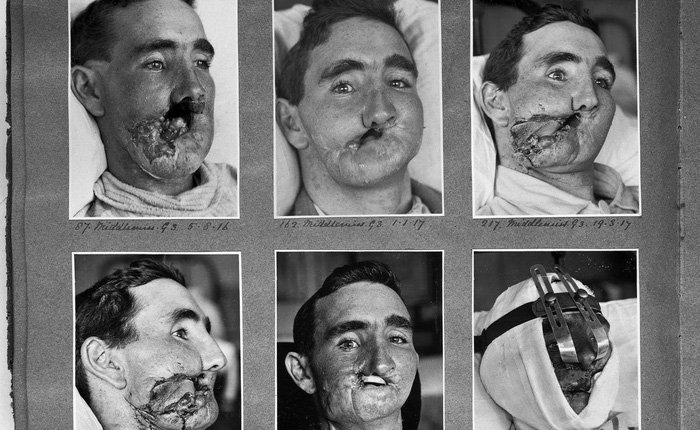 """Câu chuyện bi thảm về hàng trăm phi công """"chuột lang"""" trong thế chiến II và vị bác sĩ đã giúp họ tìm lại hình hài con người"""