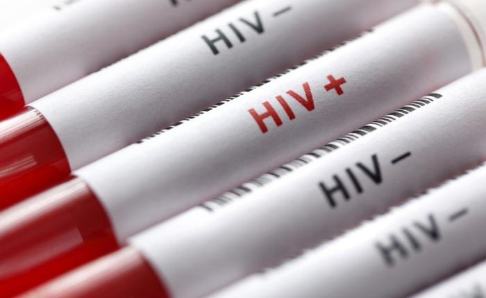 Nhiều người Nga coi HIV/AIDS là trò bịp bợm của truyền thông Phương Tây, dịch bệnh bùng phát mạnh