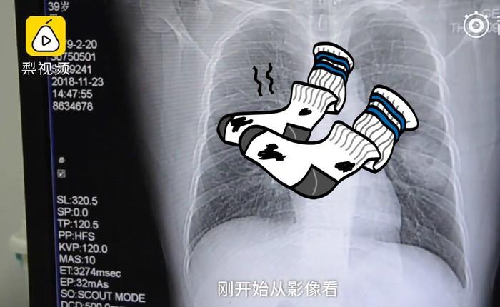 Một người đàn ông Trung Quốc bị nhiễm nấm phổi vì ngửi những đôi tất bốc mùi của chính mình