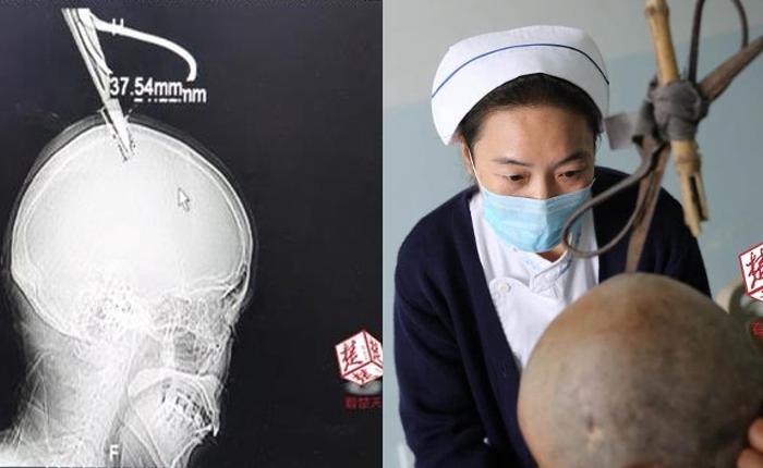 Bị chiếc kéo cắm vào đầu, người phụ nữ Trung Quốc vẫn bình tĩnh tự bắt xe bus đến bệnh viện