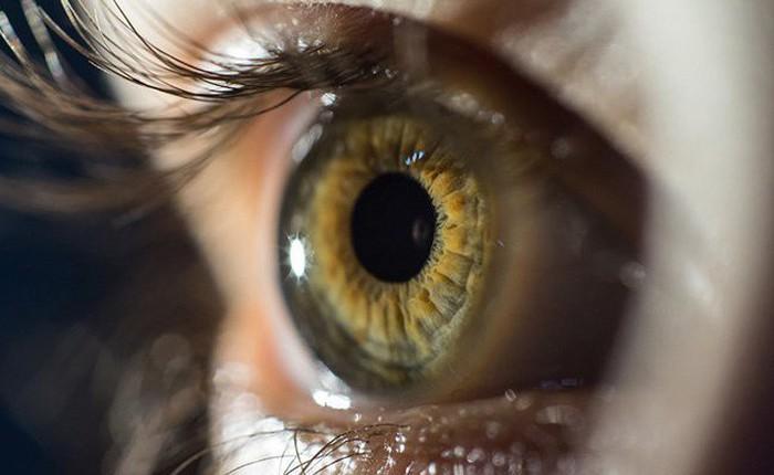 Điều gì sẽ xảy ra khi mống mắt của bạn rụng rời hết cả?