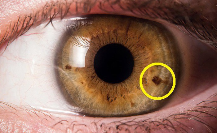 Ung thư mống mắt: Căn bệnh hiếm gặp nhưng đáng sợ
