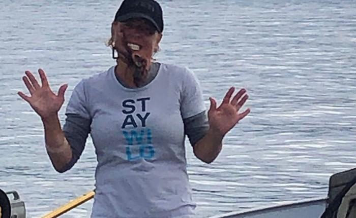 Chụp ảnh tự sướng với bạch tuộc độc, người phụ nữ này đã phải nhập viện