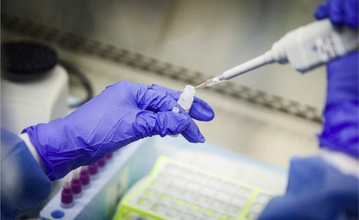 Đức tìm ra cách tăng 10 lần năng lực xét nghiệm COVID-19