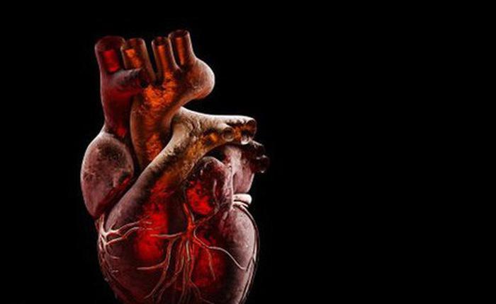 """SARS-CoV-2 không chỉ tấn công phổi, còn là """"kẻ thù nguy hiểm"""" của tim"""