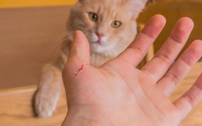 Vi khuẩn mèo cào biến cậu bé 15 tuổi thành một con người khác, phải tốn hơn 9 tỷ đồng để chữa trị